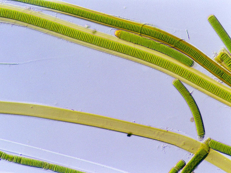 <p><strong>Fig. 2.25.</strong> (<strong>A</strong>) <em>Lyngbya</em> sp. a filamentous cyanobacterium (blue-green algae) under a microscope.</p>