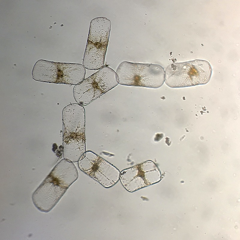 <p><strong>Fig. 2.34.</strong>&nbsp;(<strong>B</strong>) Colonial diatoms</p>