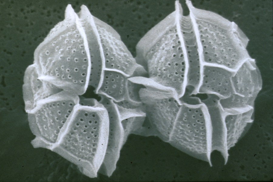 <p><strong>Fig. 2.35.</strong> (<strong>A</strong>) Scanning electron microscope image of dinoflagellates</p>
