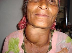 <p><strong>SF Fig. 2.16.</strong> Woman with goiter, an enlarged thyroid gland, in India</p>